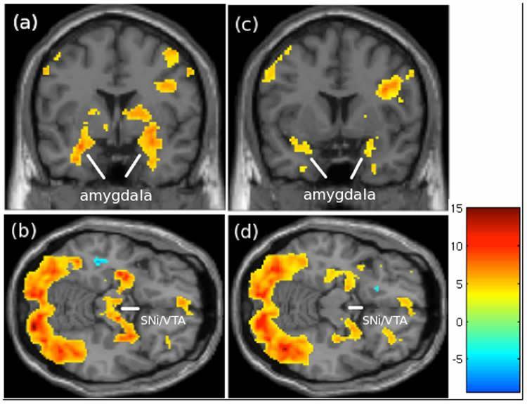 เทคนิคการหากิจกรรมของสมองด้วย MRI (Photo:Nature.com)